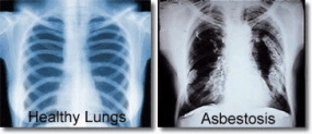 Healthy lungs vs. asbestosis lungs